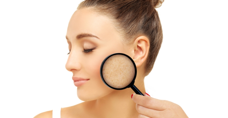 Laser skin rejuvenation - For Age Spots, Freckles, Brown Spots & Birthmarks