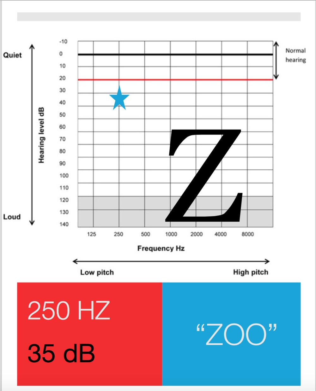 phoneme Z.jpg
