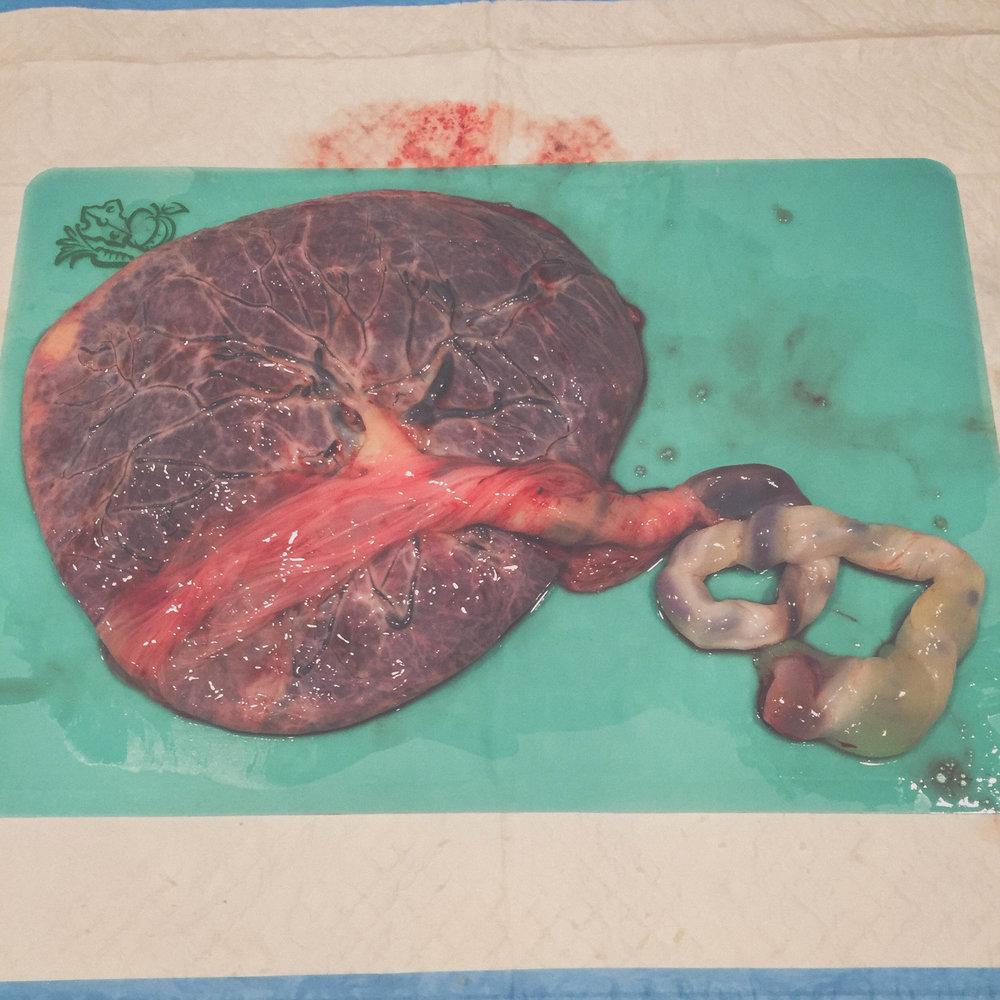 Beautiful Placenta - Tree of Life