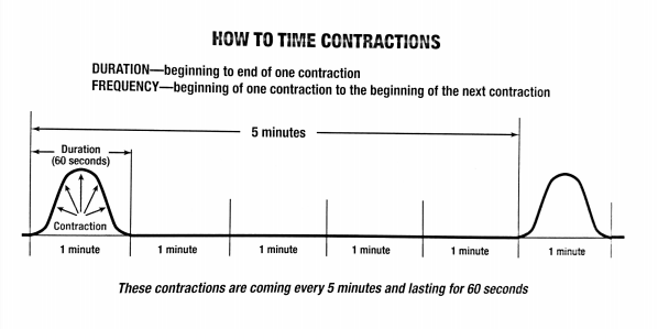 timingcontraction.png