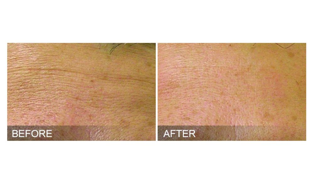 Before & After HydraFacial MD Age-Refine Treatment