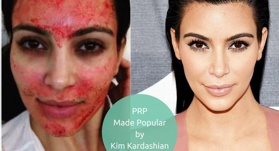 kim-kardashian-prp.jpg