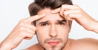 dude acne.jpg