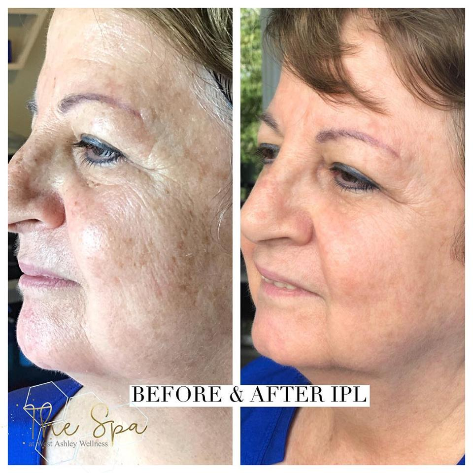 Before & After IPL - Mrs. Bev was extremely pleased with her results after just one IPL Treatment. IPL is currently on fall special for 20% off!Say goodbye to dark spots, uneven skin tone and sun damage skin!Book your treatment today 843.225.9810