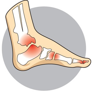 3_Arthritis.jpg