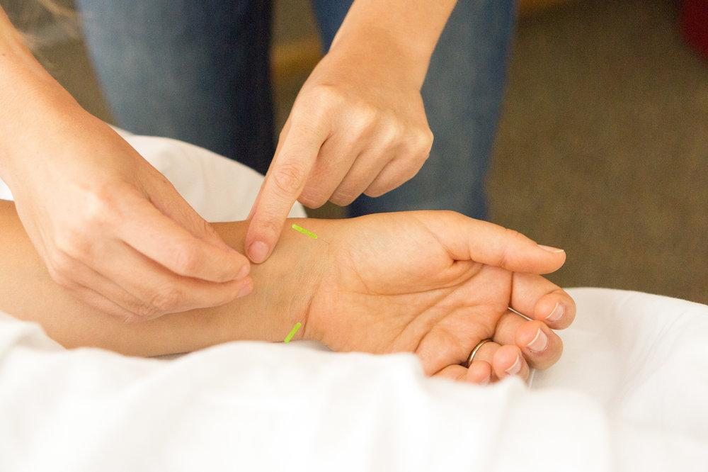 Acupuncture Wrist 2.jpg