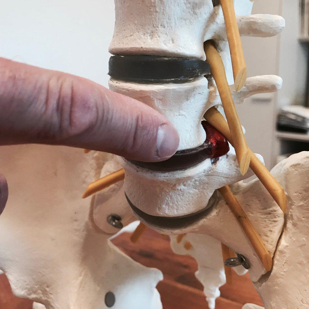Symptome bei einem Bandscheiben-Vorfall - Akute Rücken- oder Nackenschmerzen mit Ausstrahlungen in die Arme und Beine oder Kribbeln in den Armen und Beinen oder eine plötzlich auftretende Schwäche sind häufig ein Hinweis auf den Bandscheibenvorfall (Diskushernie, Diskusprolaps).
