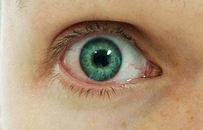 Allergy Irritated Eye
