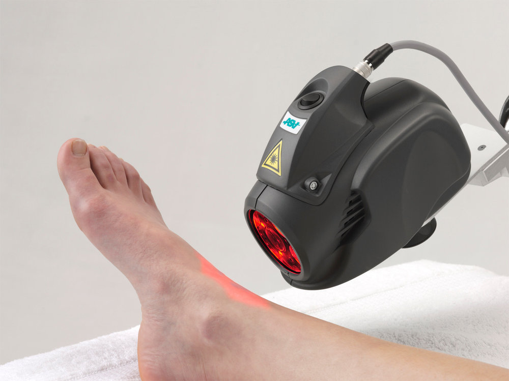 mls laser therapy for foot pain