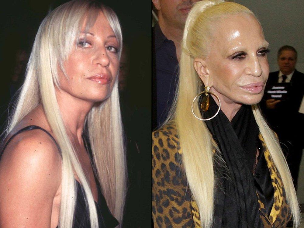 Donatella Versace Plastic Surgery 'Gone Wrong'