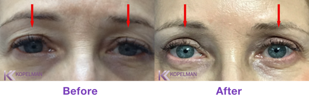 Cosmetic Eyelid Surgery By Dr. Kopelman