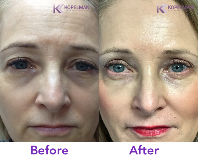 A Cosmetic Brow Lift by Dr. Kopelman