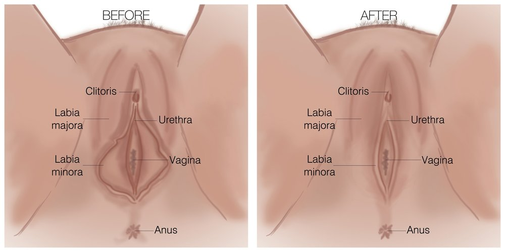 Labiaplasty Before & After Diagram