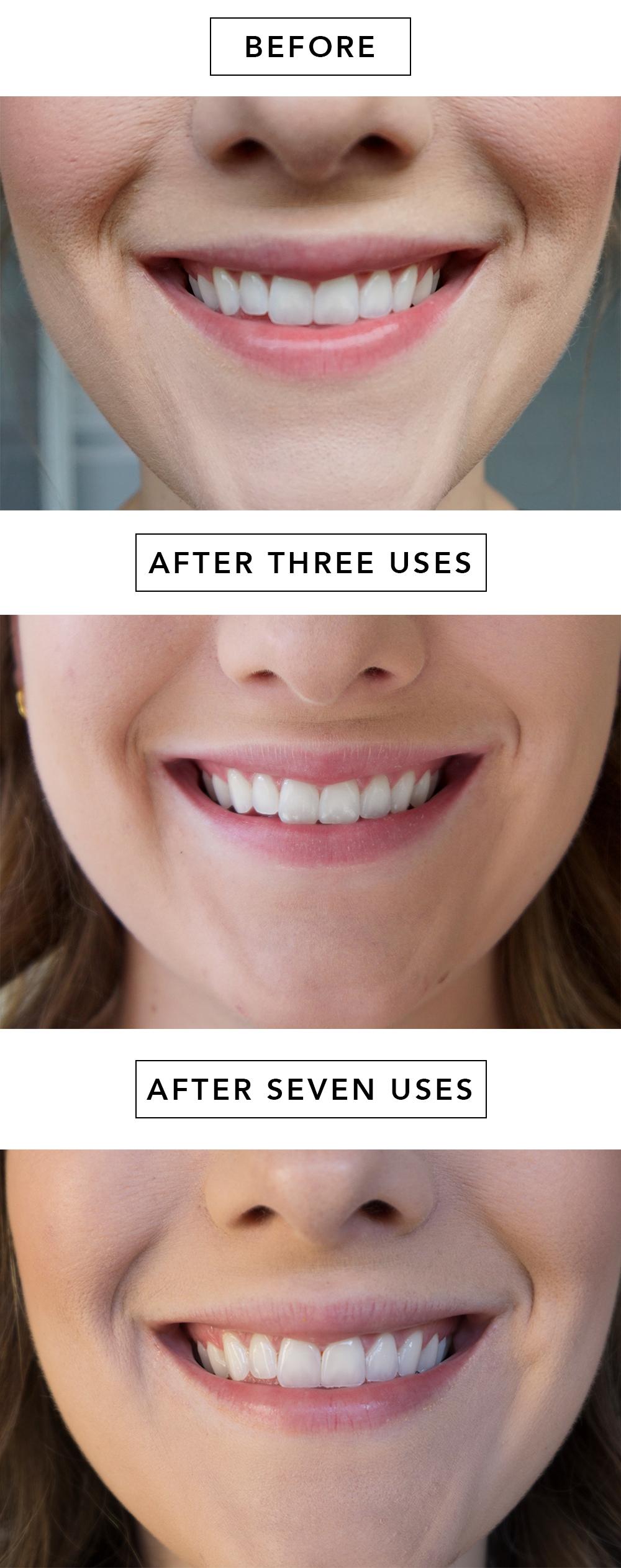 smile-progress