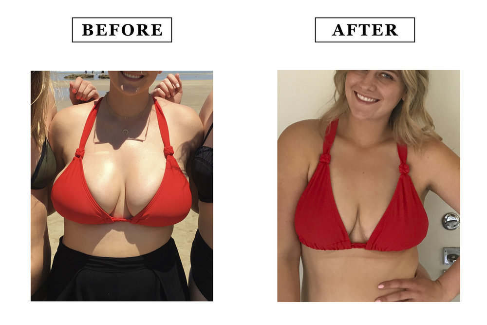 breast-reduction-ba.jpg