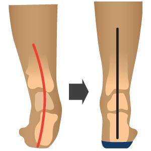 align foot.png