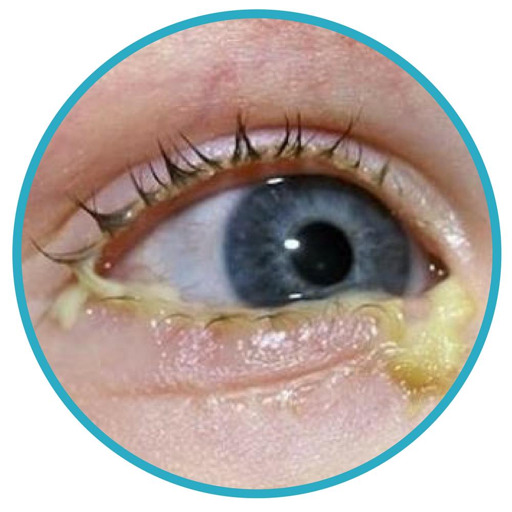 Eye Discharge