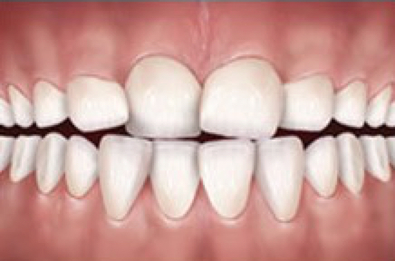Teeth are crooked or rotated. This is a common reason for people to seek orthodontic treatment and correction can improve smile esthetics.