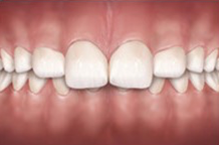 The top teeth are too far in front of the bottom teeth. This can increase risk for injury to top teeth and make it difficult to close your lips. This is very common and can be corrected several ways with orthodontic treatment.