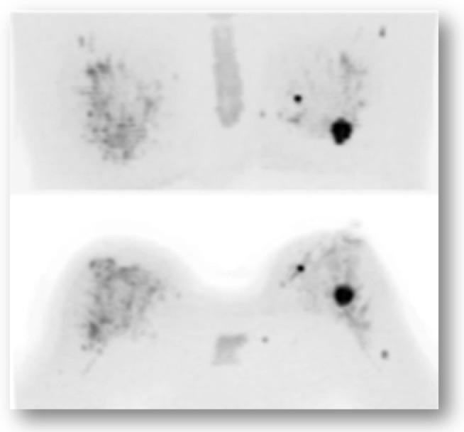 ▶ドゥイブス・サーチで得られた拡散強調画像  最大値投影(MIP)で示しています。全域に渡り、左右差がなく、アーチファクトのない脂肪抑制と、正常乳腺部分の描出が得られています。