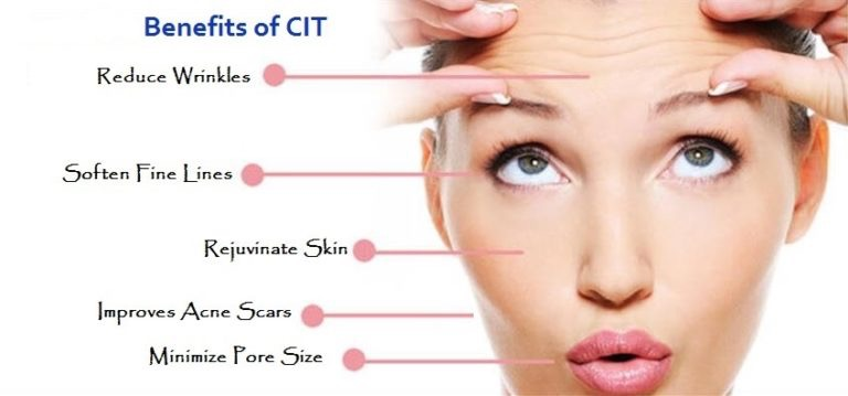 benefits-of-cit-microneedling-red-bank
