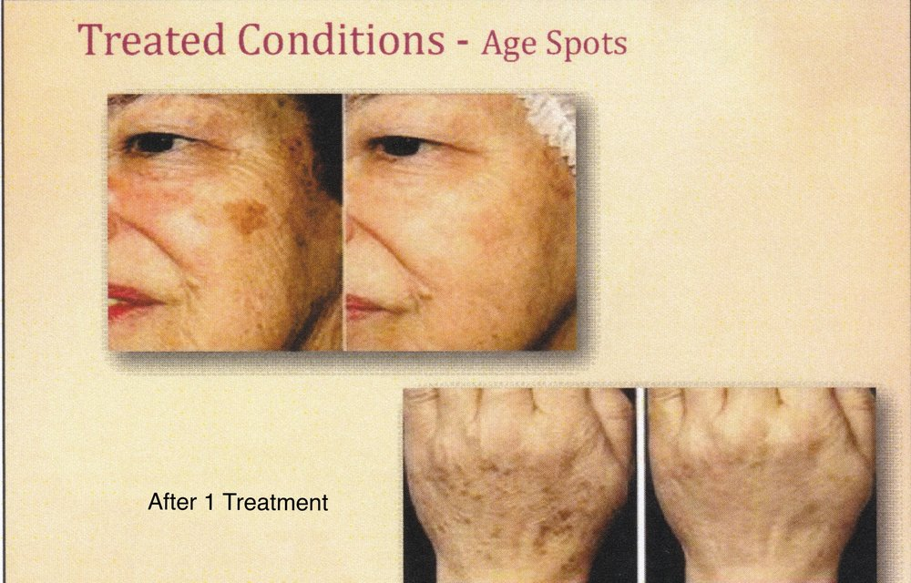 before and after microneedling age spots