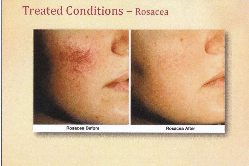 before and after results from microneedling rocasea