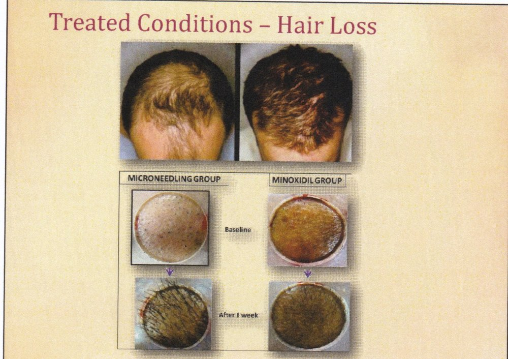 before and after results after microneedling for hair loss