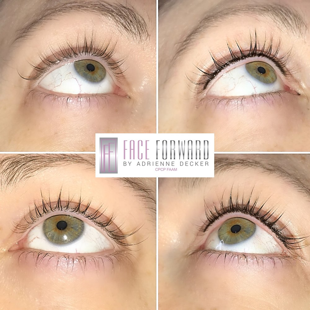 Upper Permanent Lash Line Enhancement