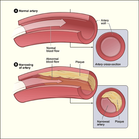 Copy of Peripheral Arterial Disease (PAD)
