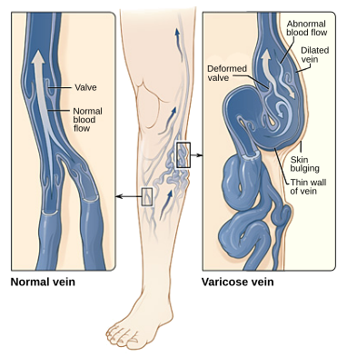 Copy of Varicose Veins