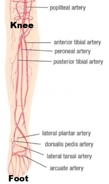 Normal  anatomy involves three arteries from the knee to the ankle: Anterior Tibial, Peroneal, and Posterior Tibial. The case  below  shows blockage in two of the three arteries.
