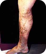 PTS - Post-thrombotic syndrome (PTS) is a long-term complication of DVT, manifesting as swelling, pain, edema, venous ectasia, and skin induration of the affected limb.  50%+ of DVT patients treated with the standard of care risk developing Post Thrombotic Syndrome.