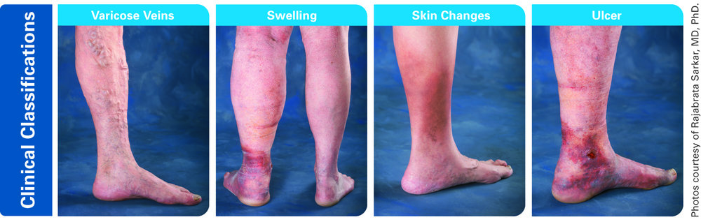 Above: The progression of varicose veins from asymptomatic to ulcer.