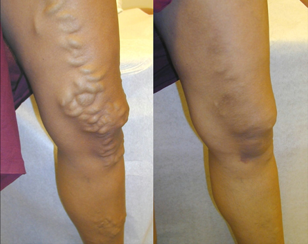 before and after varicose vein.jpg