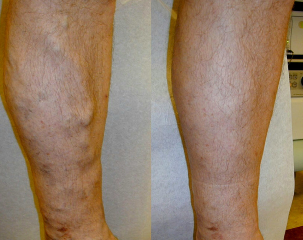 before and after varicose vein 2.jpg