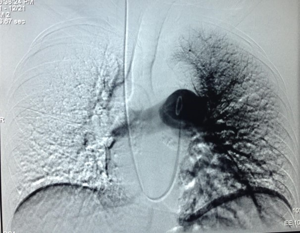 Before: no blood flow to the pt's right lung.