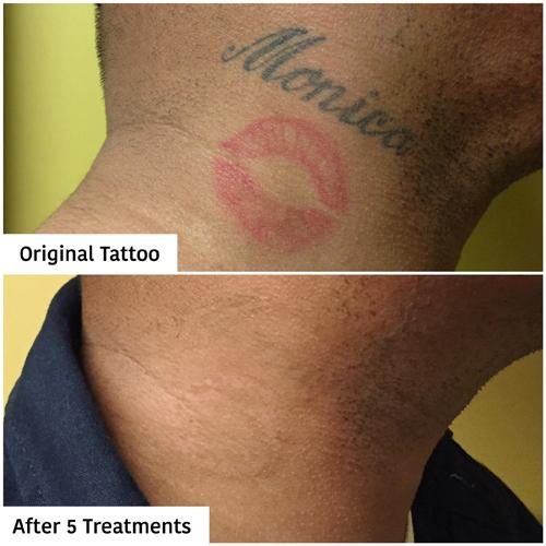 Laser Tattoo Removal Pinnacle Tattoo