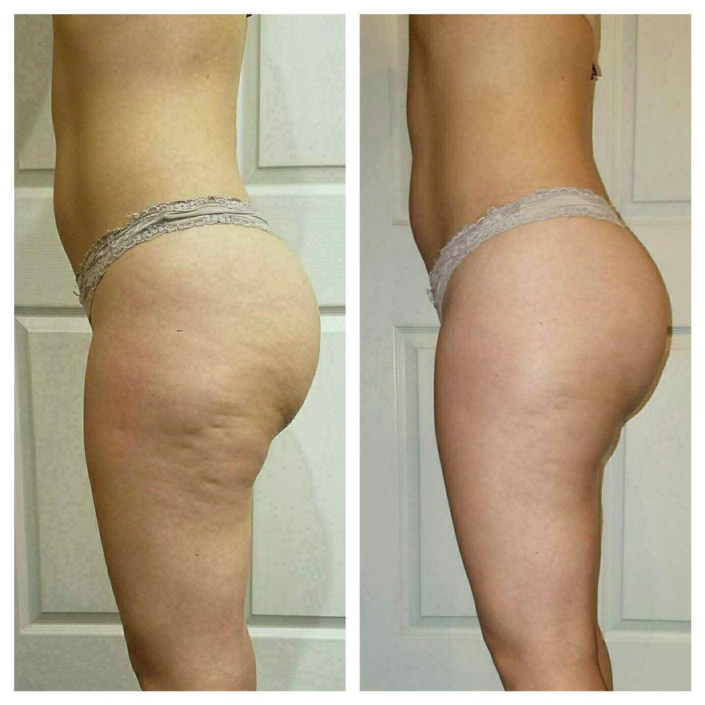 EC Beauty Studio & Spa :: Endermologie treatment results