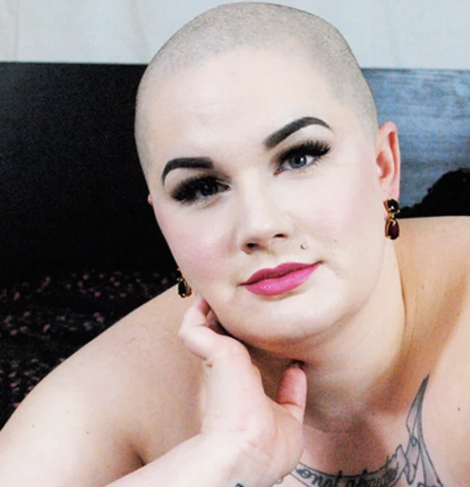 14 photos of people with alopecia that show how beautiful bald really is - 14 different people living with alopecia & their stories