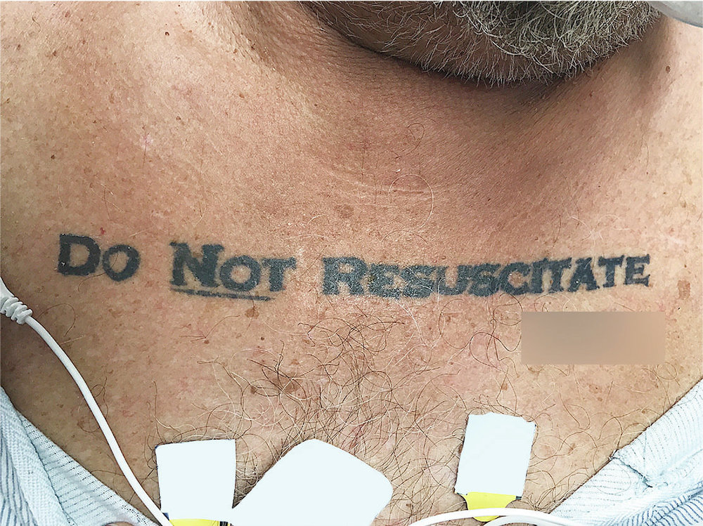 When A Tattoo Means Life Or Death. Literally - Doctors in Miami found that a man's tattoo expressing his end-of-life wishes was more confusing than helpful.