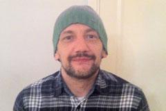 Alex kuczera's story - Bowel cancer treatment and surgery