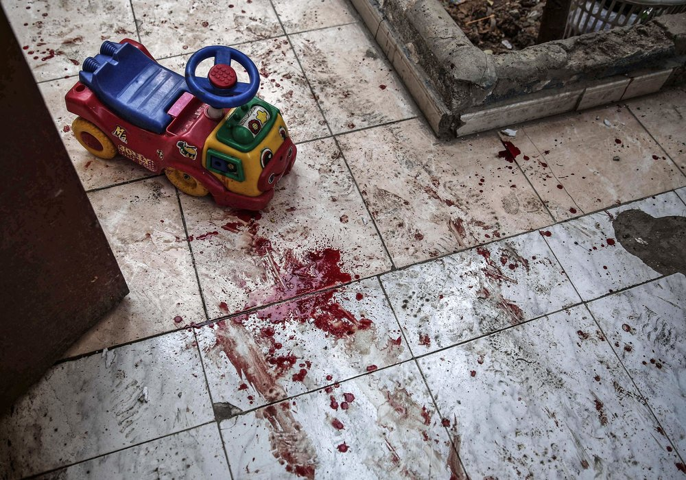 - A picture shows the blood stained floor of a kindergarten following reported shelling in the rebel-held area of Harasta