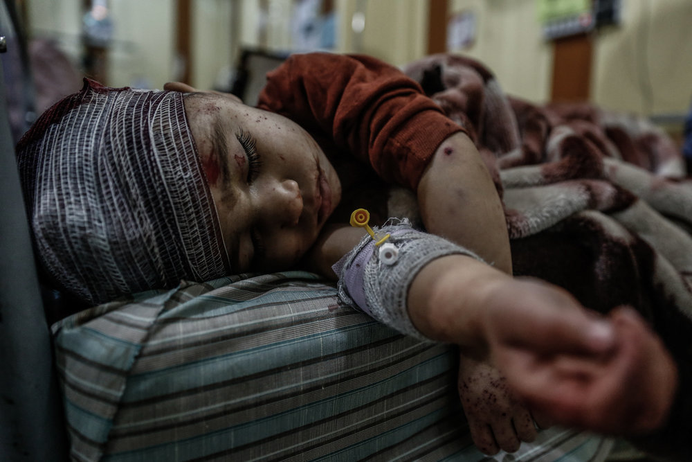 - A boy lies in a hospital bed after he was injured following airstrikes by the Syrian government forces on the city of Douma, east of the capital Damascus, on February 26, 2016.