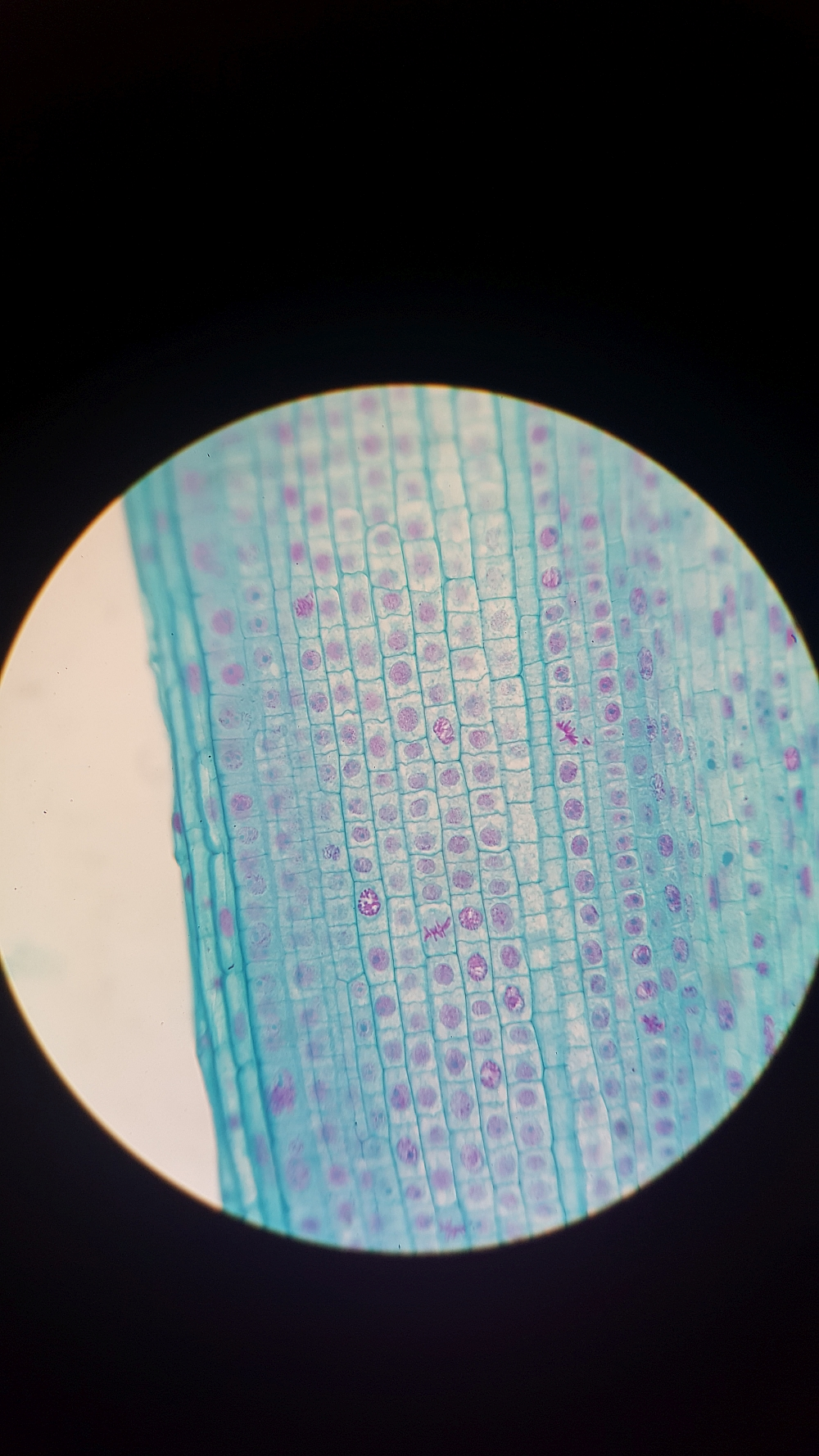 Onion root tip under a compound microscope!