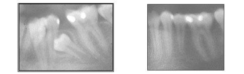 lori-smith-orthodontics_impacted.jpg