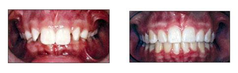 lori-smith-orthodontics_deep-overbite.jpg