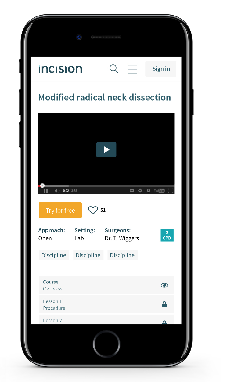 iphone-mockup-incision-marketing-schmarketing