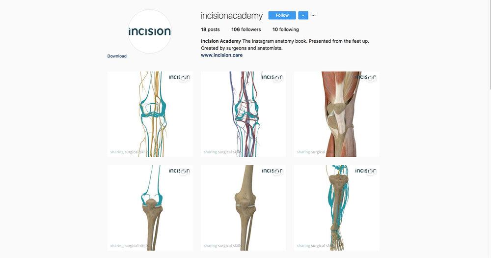 incision-instagram-strategy-marketing-schmarketing