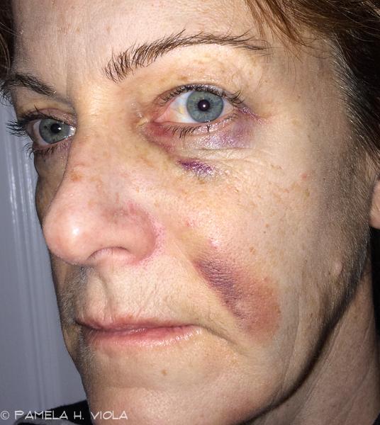 Pamela bruise_7.jpg